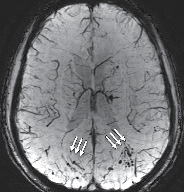Susceptibilityweighted image shows extensive microhemorrhage (arrows) consistent with diffuse axonal